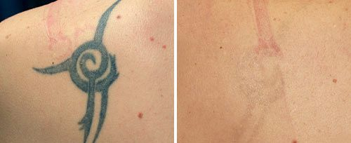 tattoo_removal_dr_ahcan3